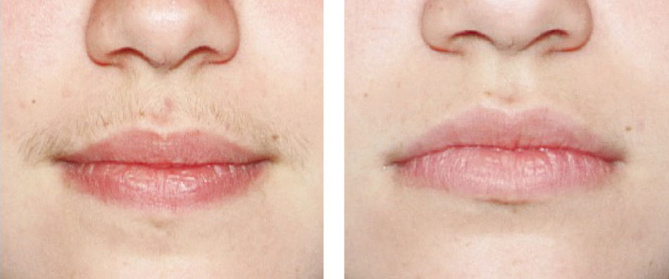 6ilcqtd5ex-woman-mouth-before-after.jpg