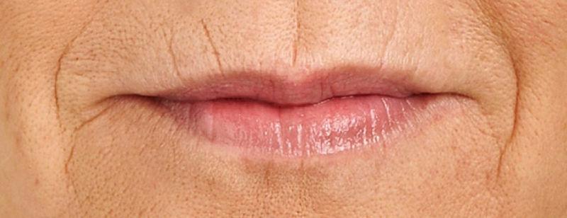 bxziqc4jsn-woman-mouth-ritides.jpg