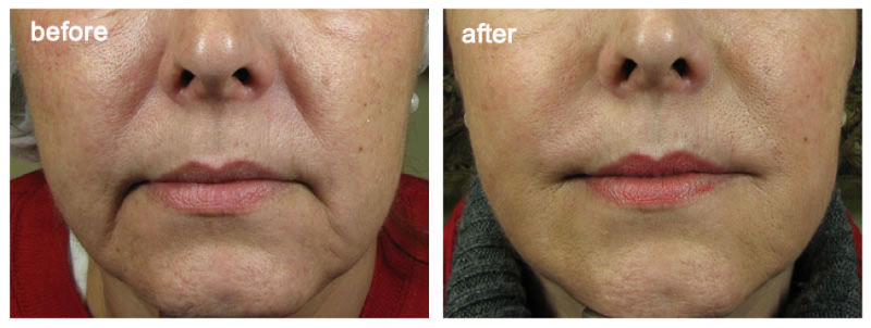 u7kovmuov0-woman-mouth-before-after-1.jpg