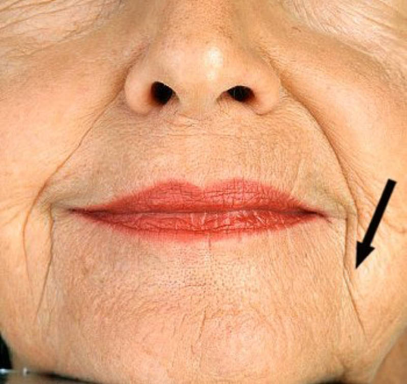 z2yzrco5ud-old-woman-lipstick-ritides.jpg