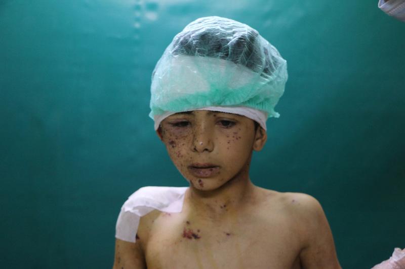 travel photographer 2020: πολιορκημένη Συρία, τραυματισμένο παιδί σε νοσοκομείο